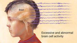 seizure disorder