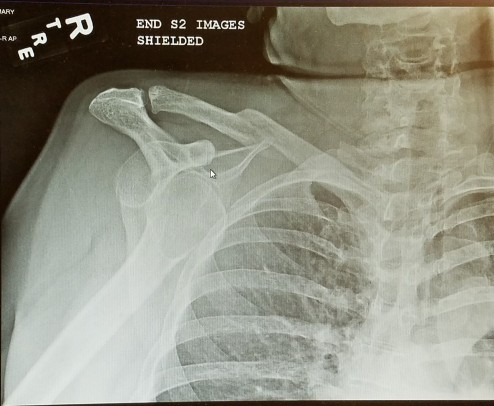 Dislocated shoulder 1